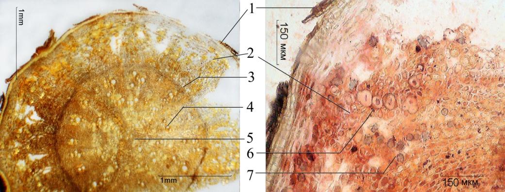 Щавеля конского корни микроскопия